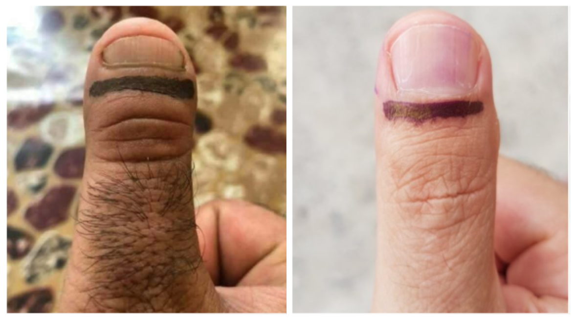 15 Ugliest Thumbs In Elections 2018 Are Still Haunting Us